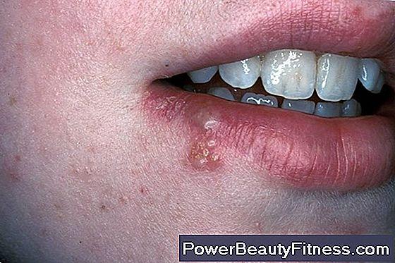 hpv gola febbre
