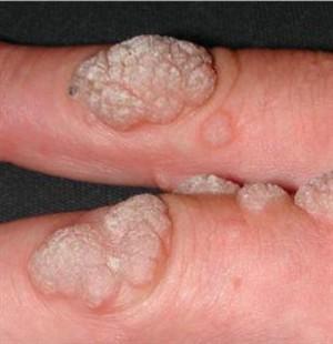 human papilloma virusu belirtileri