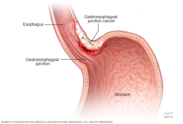 cancer abdominal area