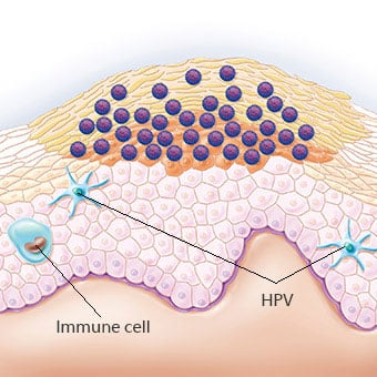 Hpv warts face treatment. hhh   Cervical Cancer   Oral Sex