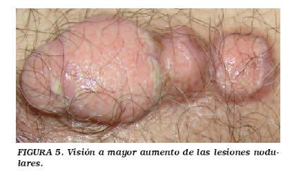 La prostata produce sperma, Cancer de uretra hombre sintomas