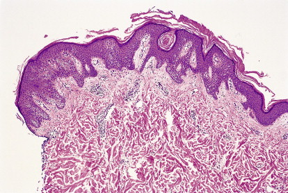 confluent and reticulated papillomatosis histology