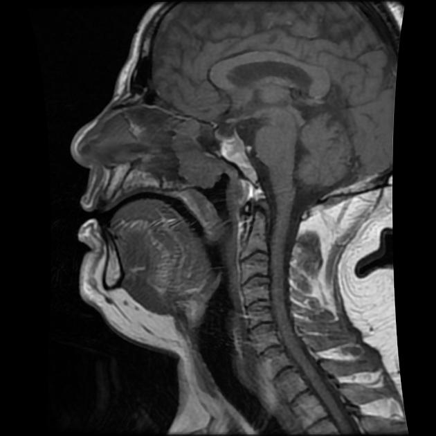 Sarcoma cancer medicine - transroute.ro