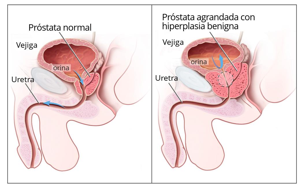 Cancer de prostata biologia molecular, O SELECȚIE A GENELOR CANCERIGENE TESTATE - ONCOMPASS™