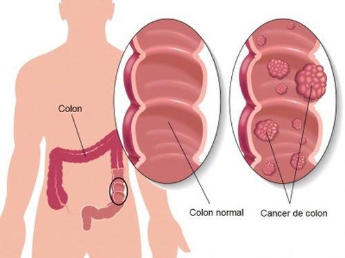 cancer de colon simptome timpurii
