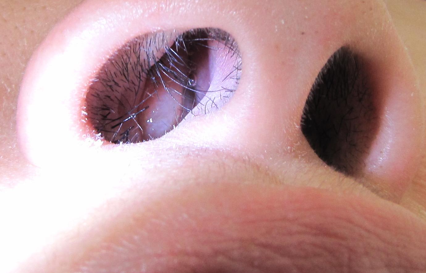 Define nasal papilloma. Tratamentul endoscopic al fistulelor de lichid cefalorahidian
