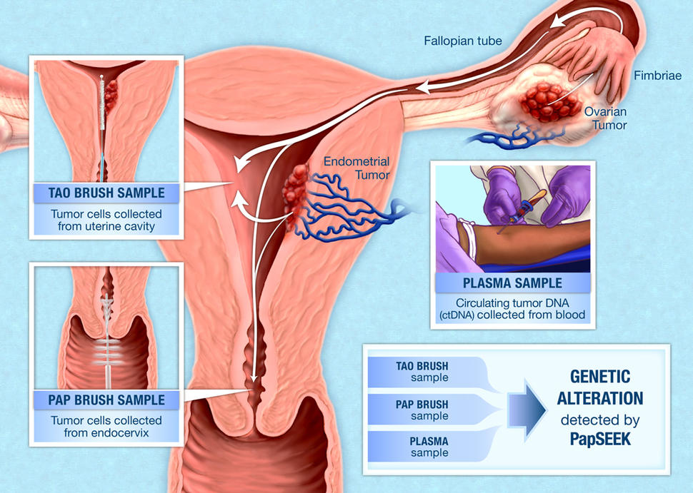 cancer ovarian endometriosis cancer risk abdominal fat