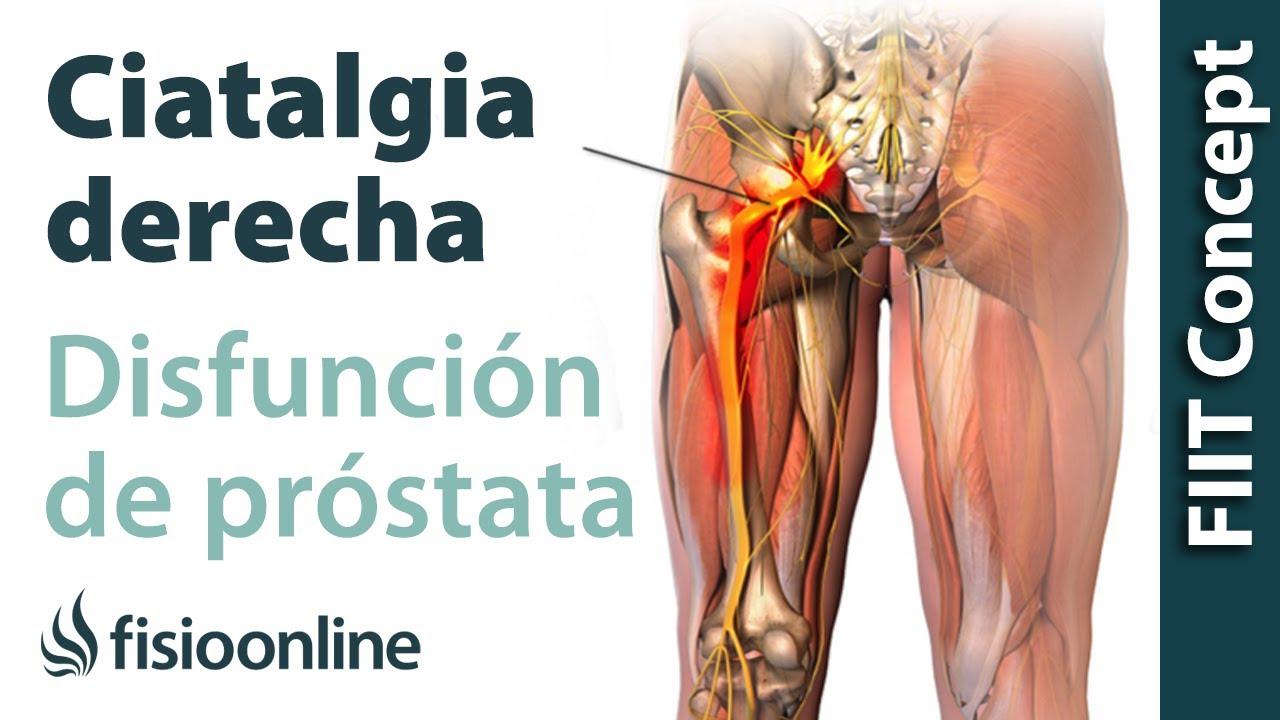 cancer prostata y dolor de espalda