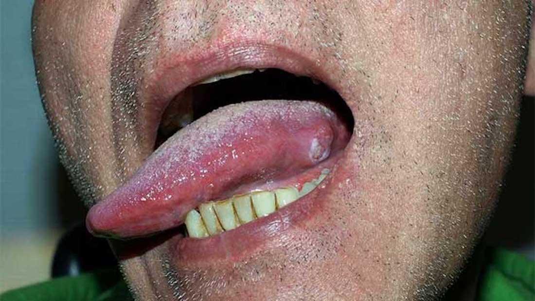 hpv virus on tongue