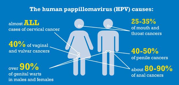 hpv virus zoenen