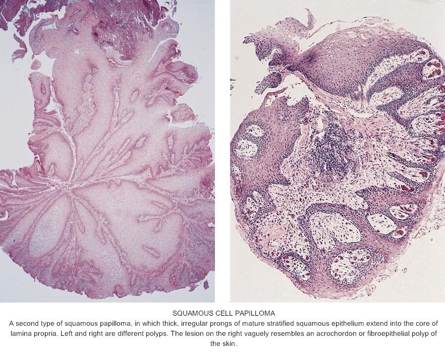 Squamous papilloma esophagus histopathology