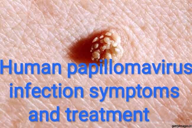 Human papillomavirus symptoms and cause, I have hpv throat cancer
