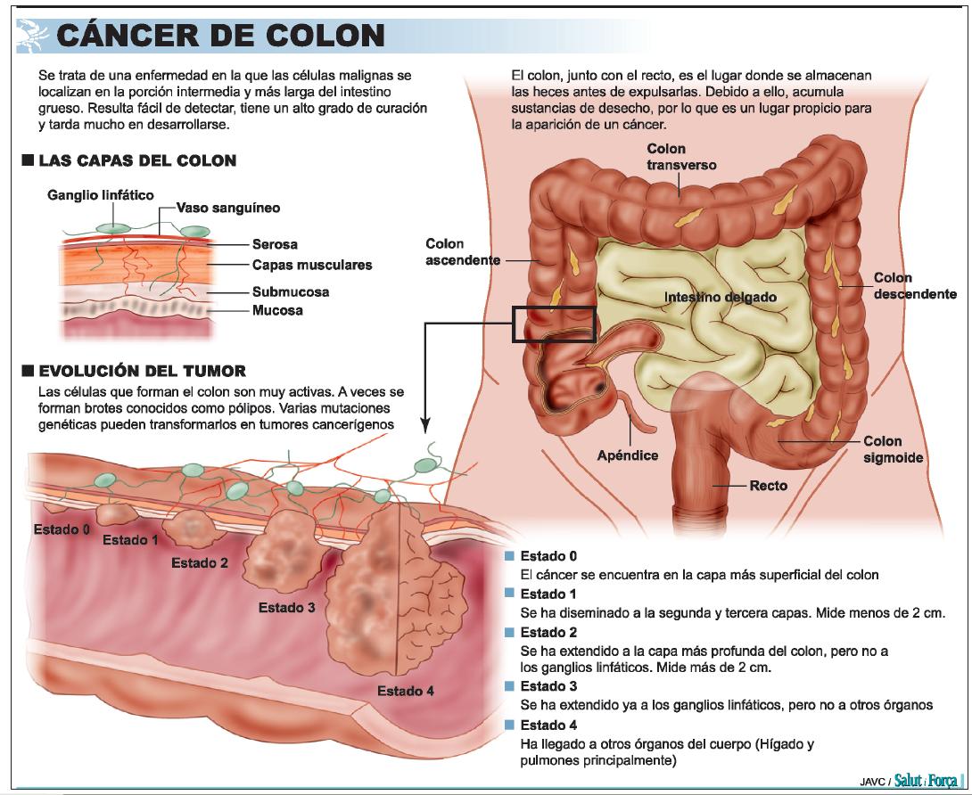 Cancer de colon higado Traducere