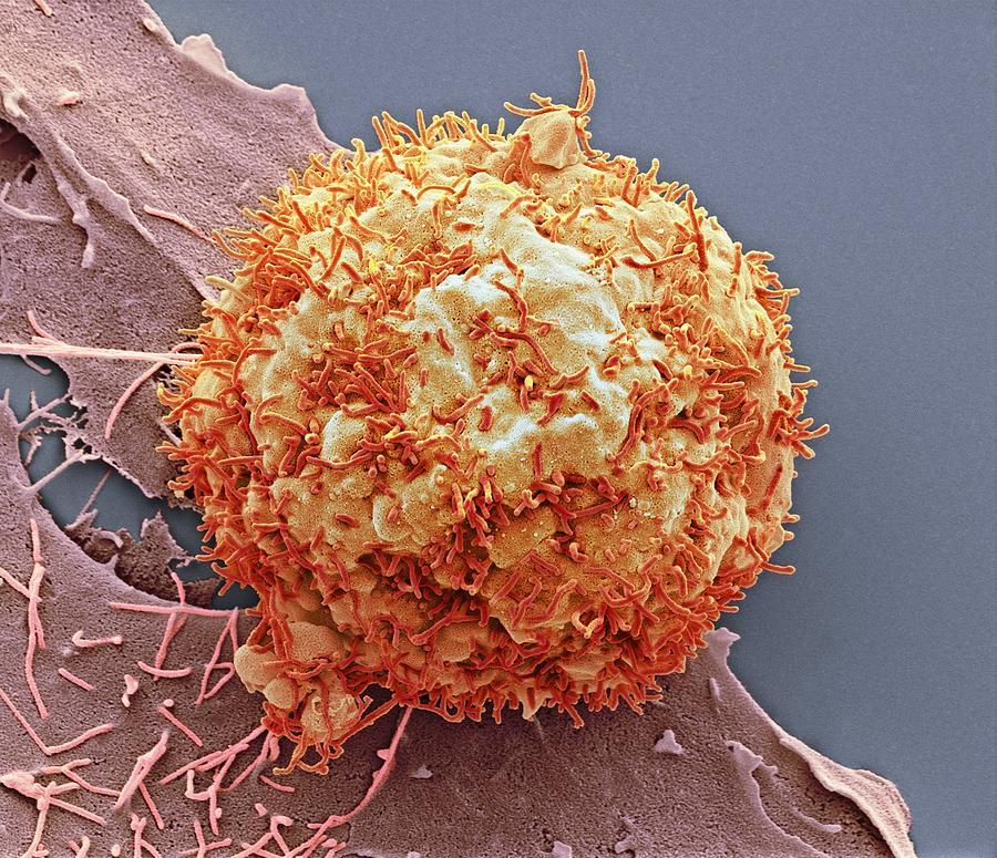 Hepatic cancer nutrition. cancer Hepatocellular