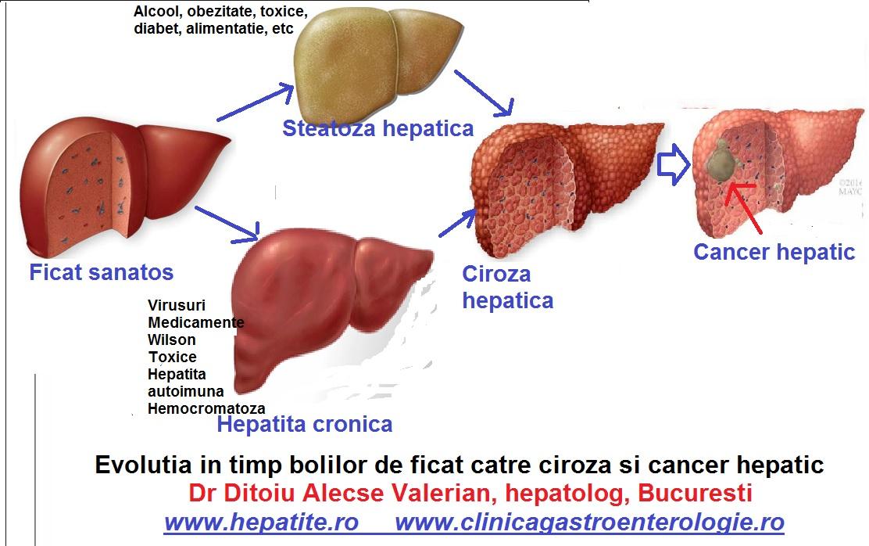 cancer hepatic tratament medicamentos