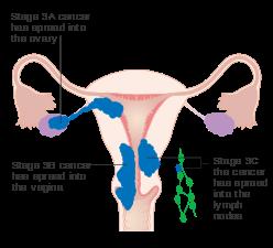 cancer ovarian endometriosis eliminarea parazitilor pe cale naturala