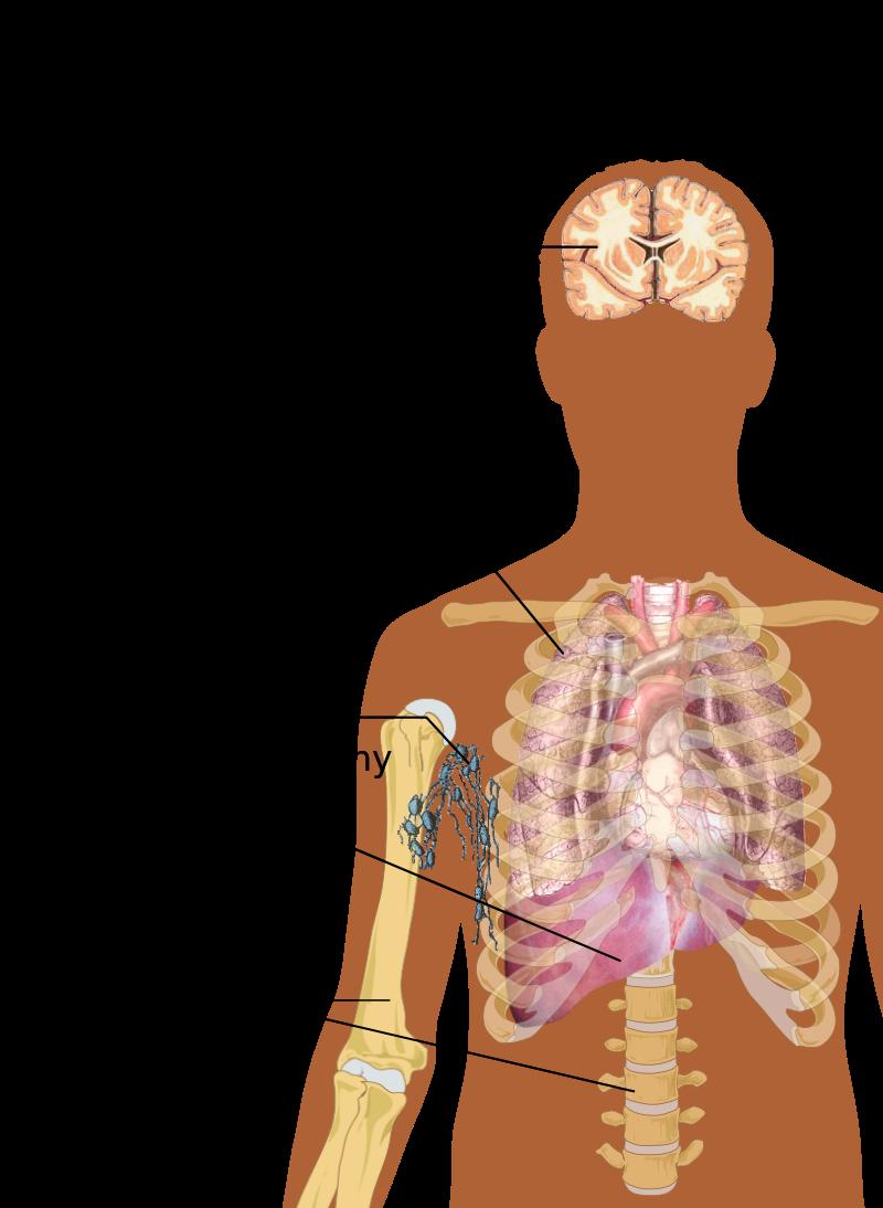 cancer sarcoma types endo paramiti helminti