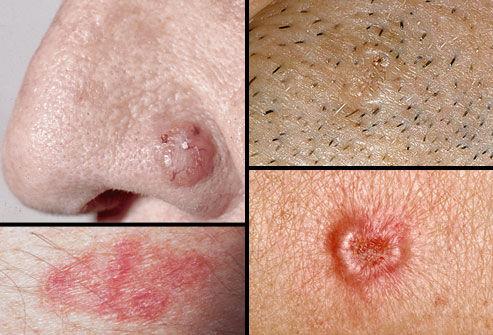Cancerul de piele non-melanom - transroute.ro