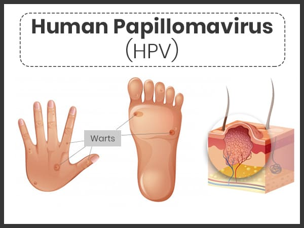 What causes human papillomavirus (hpv) infection