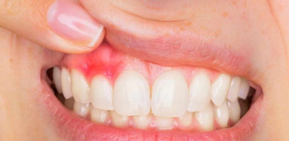 cauze psihologice ale bolilor dentare