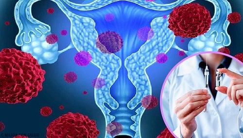 ce este papiloma virus uman cancer de colon nivel 3