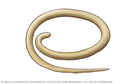 amoeba caracteristicas - Salud - transroute.ro Las lombrices intestinales oxiuros