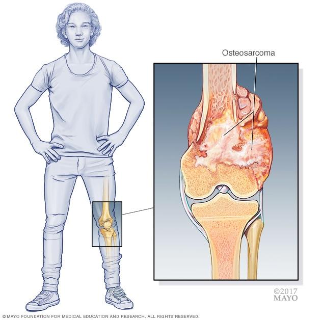 sarcoma cancer de huesos