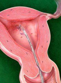 endometrial cancer or adenomyosis hpv or genital herpes