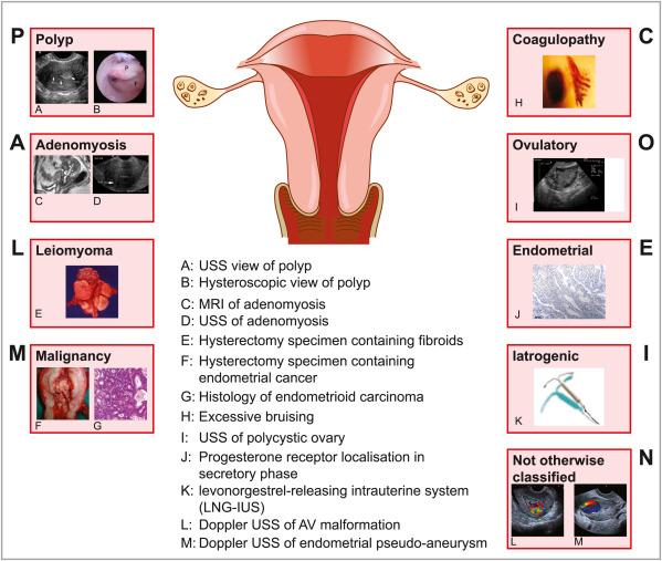 endometrial cancer or adenomyosis hpv virus kod zena
