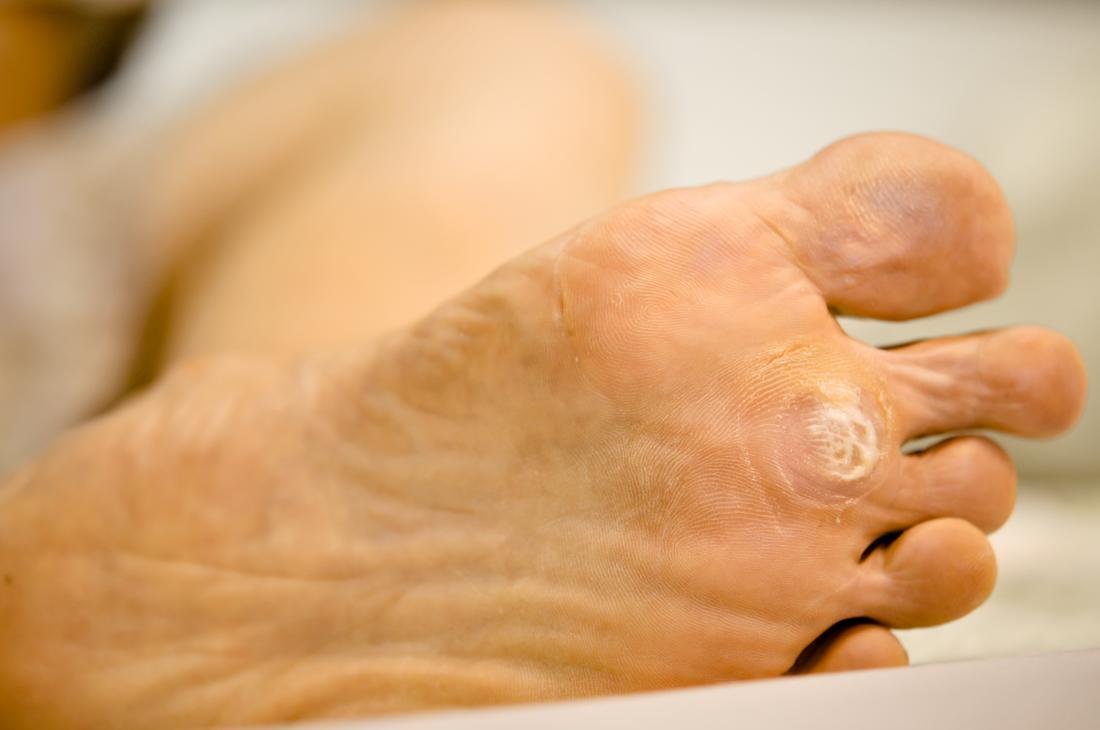 medicament pentru viermi f papillary urothelial neoplasm treatment