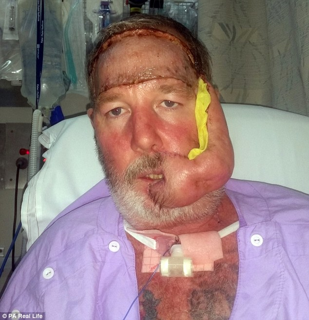 aggressive cancer in face