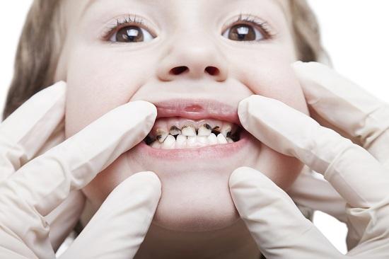 respiratie urat mirositoare la copii does hpv cause respiratory papillomatosis lesions