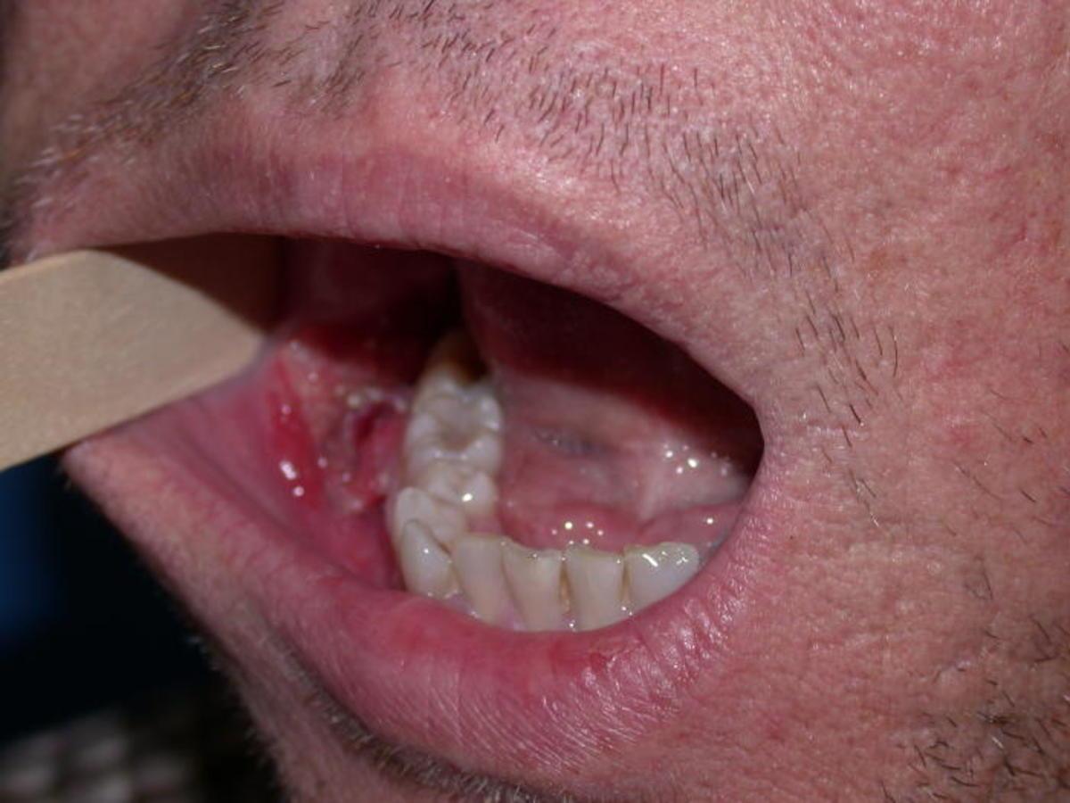 warts human papillomavirus treatment