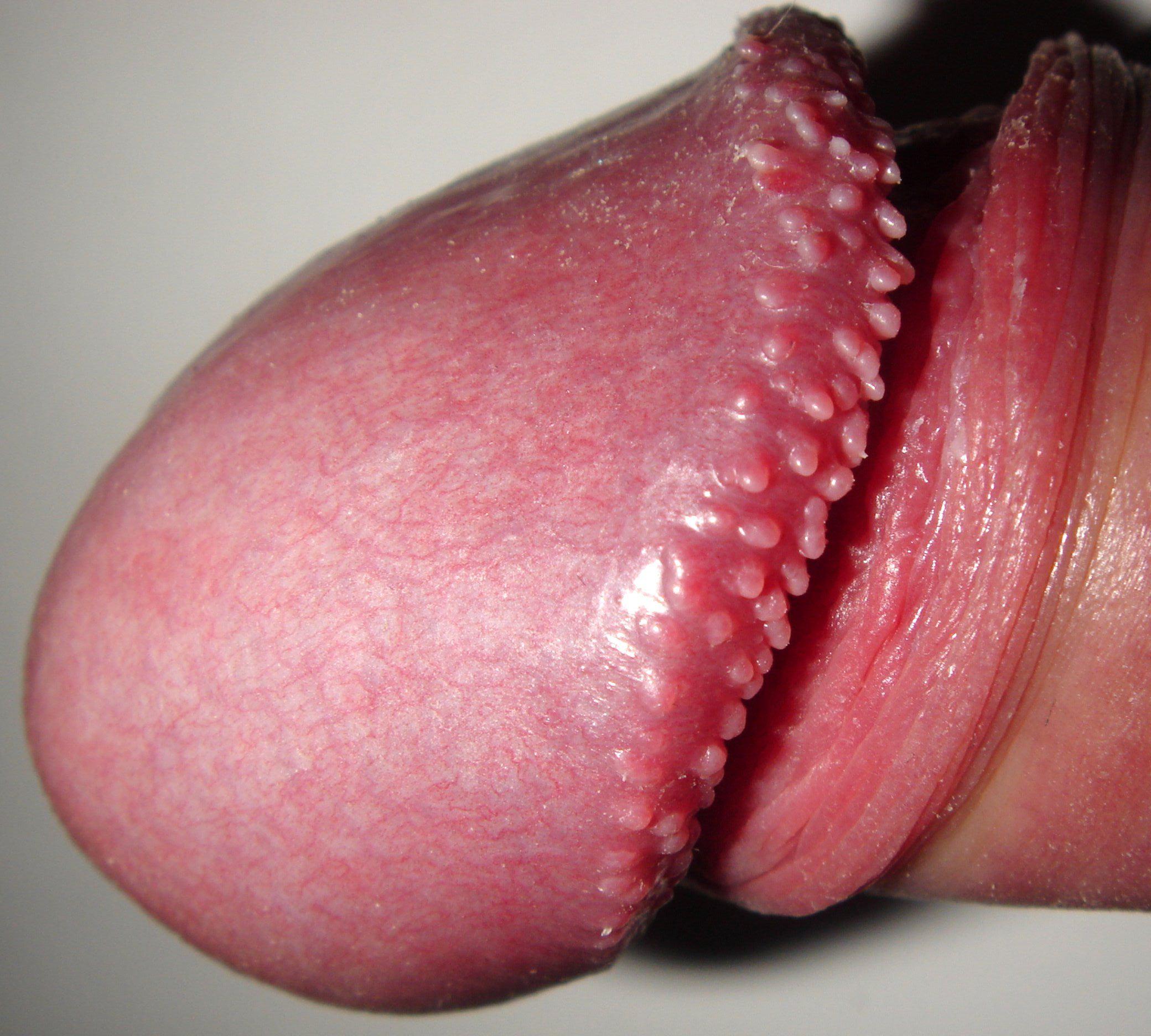 papillomatosis bumps