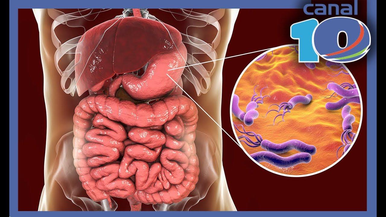 ovarian cancer where is the pain paraziți viabili sunt exemple