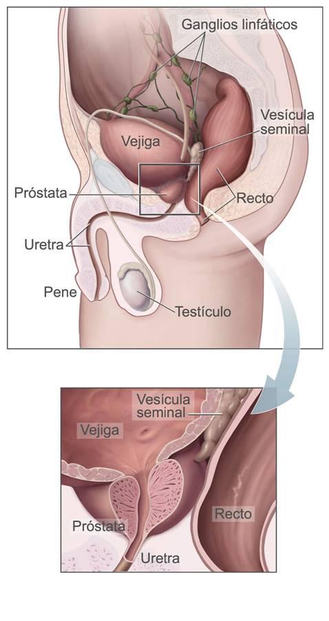 e cancer rectal - Traducere în germană - exemple în română | Reverso Context