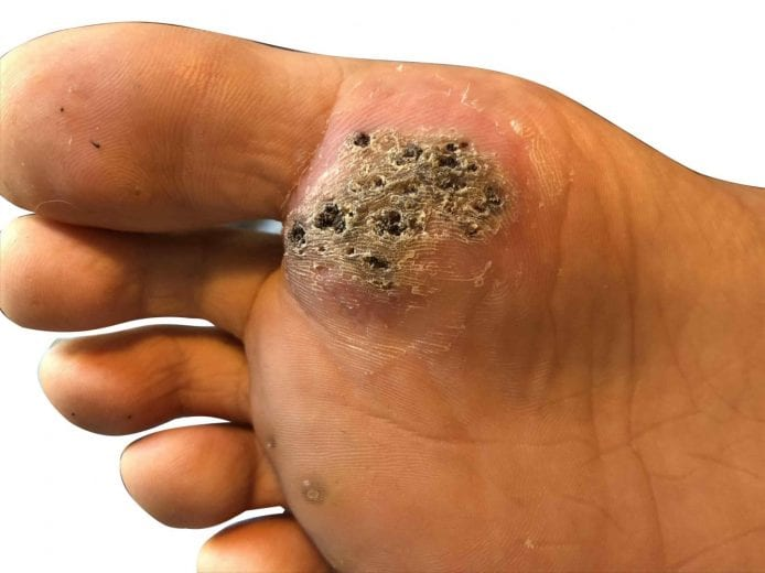 foot warts causes and treatment cancer de colon simptome timpurii