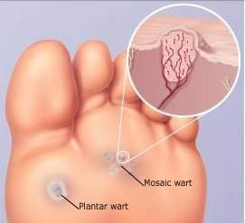 prevalence of hpv throat cancer detoxifierea corpului natural curăță corpul