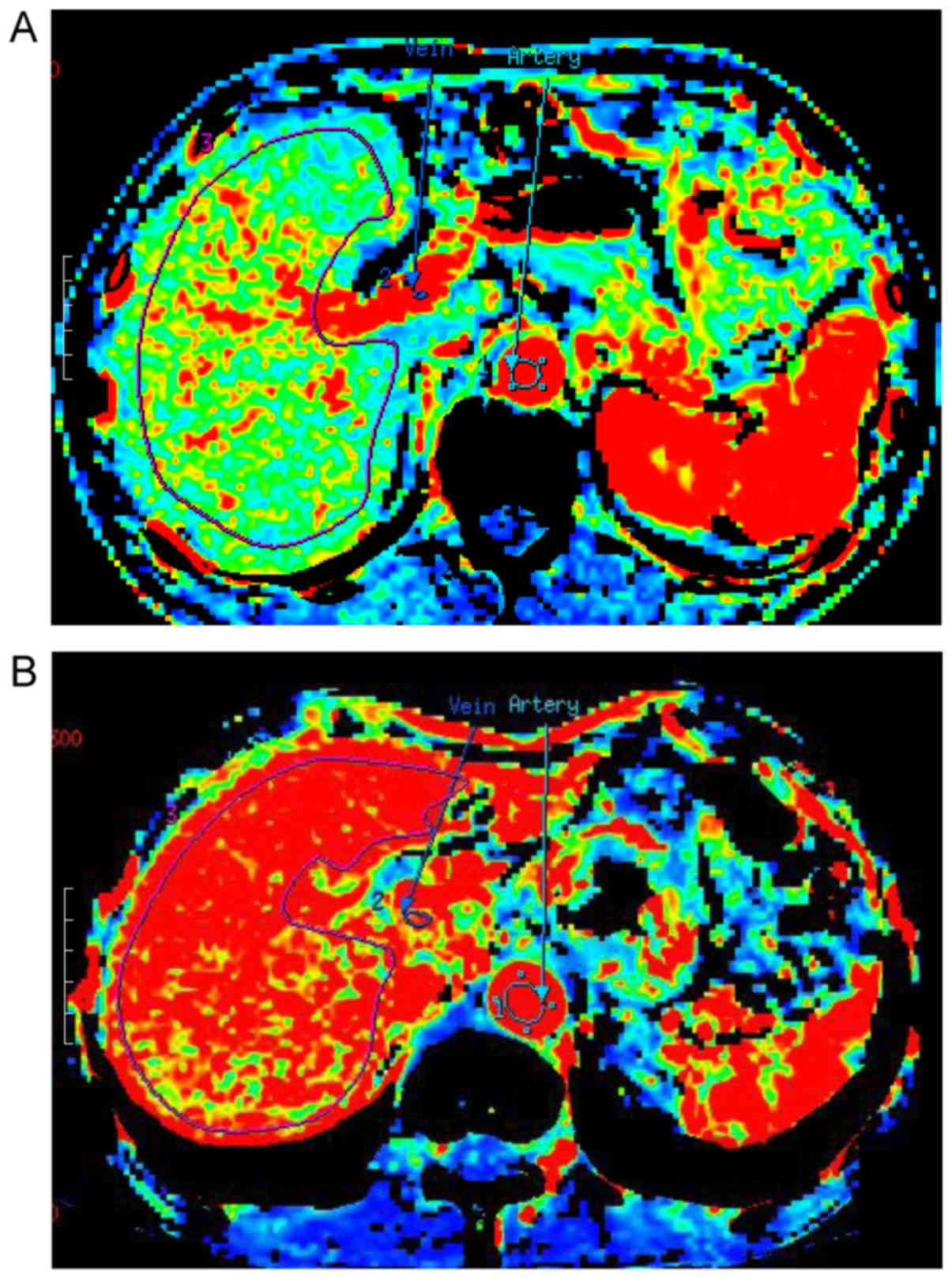 hepatic cancer perfusion papilloma virus 68