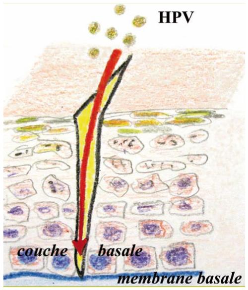 hpv cancer amygdale papillomavirus et verrues seborrheiques