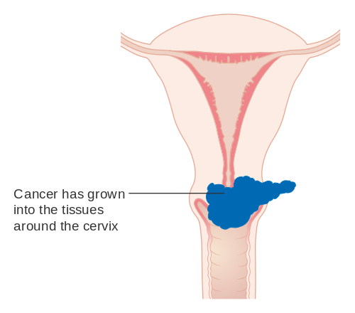 Cancer ovarian stage 4 - transroute.ro