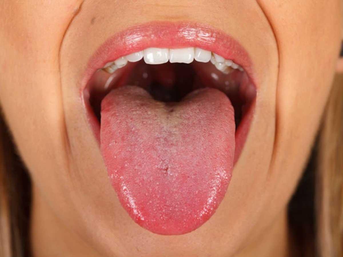 Principios de papiloma en la boca