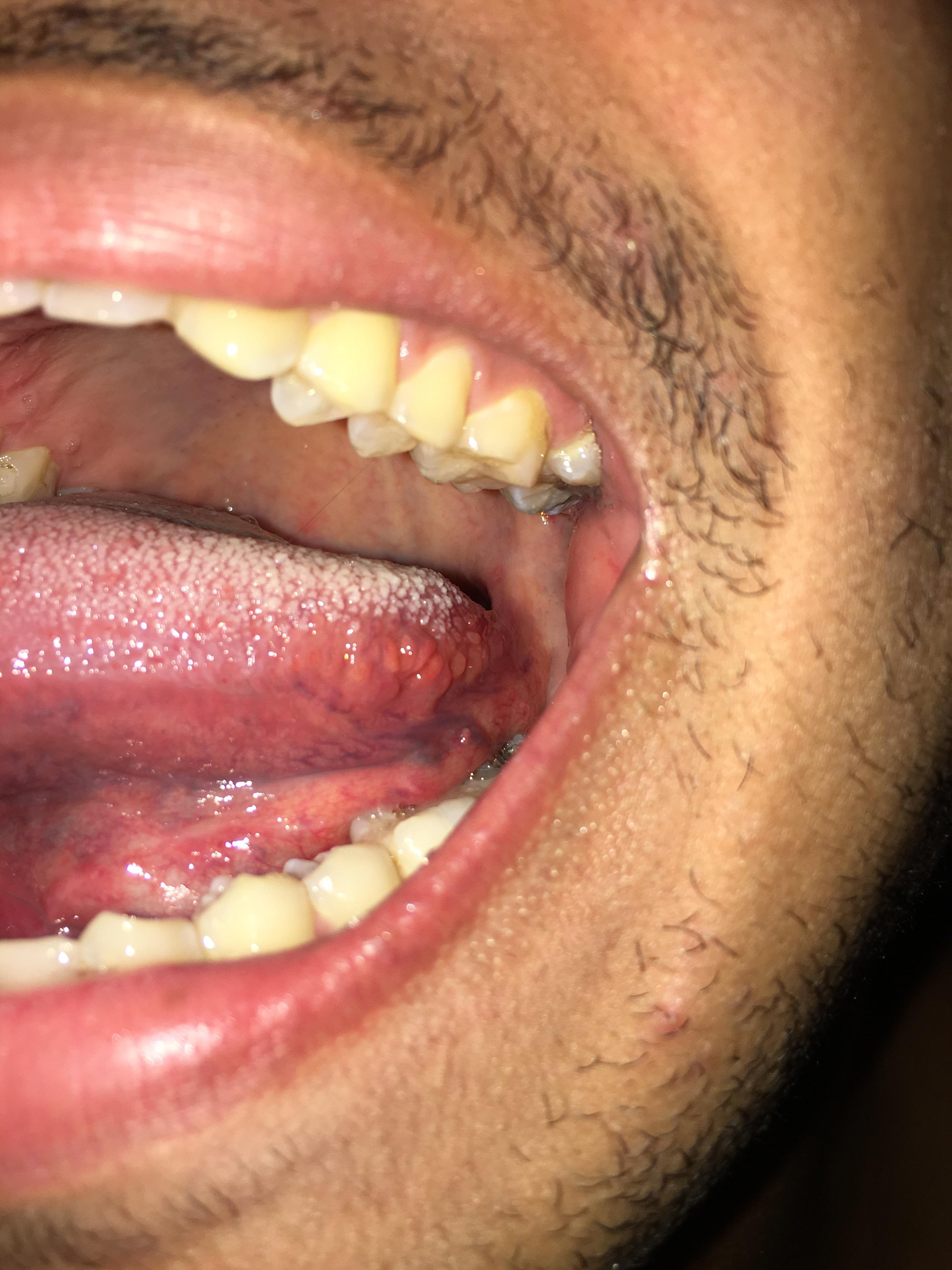hpv genital warts reddit