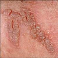Hpv propolis tedavisi. Veruca plantara sau negi in talpa: cum se manifesta si ce tratament exista