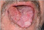 Papilloma lesion treatment