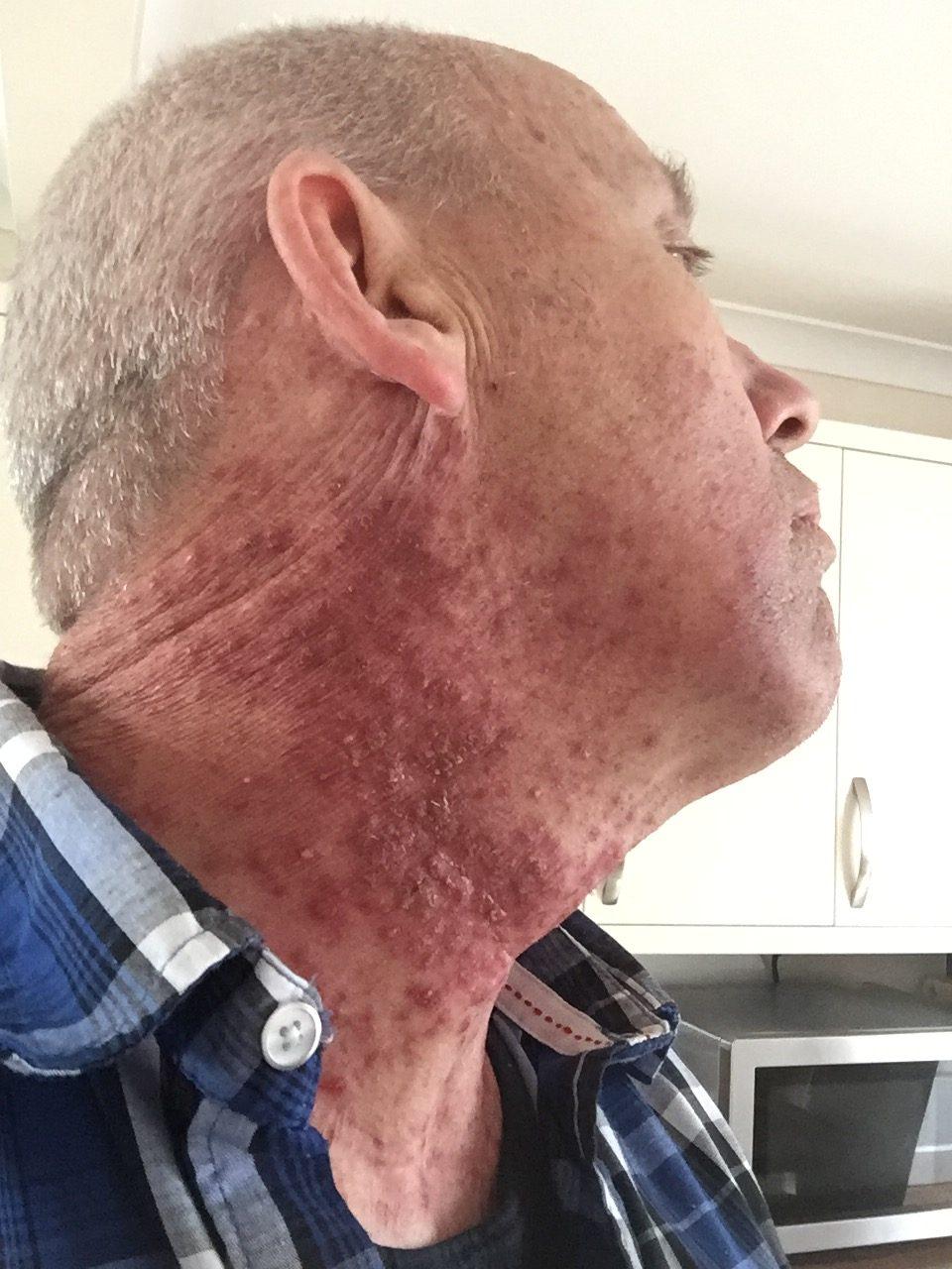 hpv throat cancer treatment side effects que es la papilomatosis vestibular