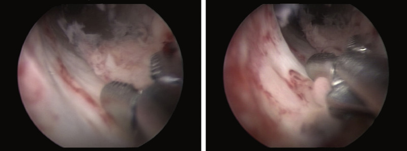 Hpv urethral cancer,