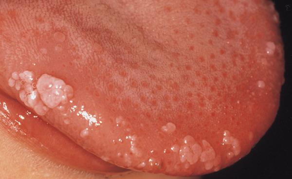 Hpv virus-prirodno lijecenje. Category: DEFAULT