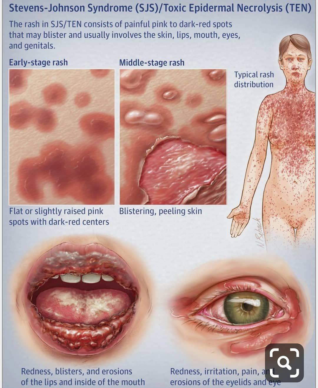 human papillomavirus usmle