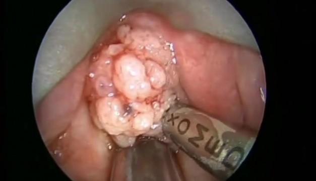 Papillomatosis surgery cost